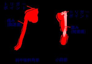 筋肉 痛 筋 膜 リリース